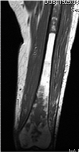 https://upload.orthobullets.com/topic/8025/images/Case D - femur - MRI T2- Parsons_moved.png