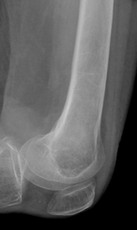 https://upload.orthobullets.com/topic/8025/images/Case D - femur - xray a - Parsons_moved.png
