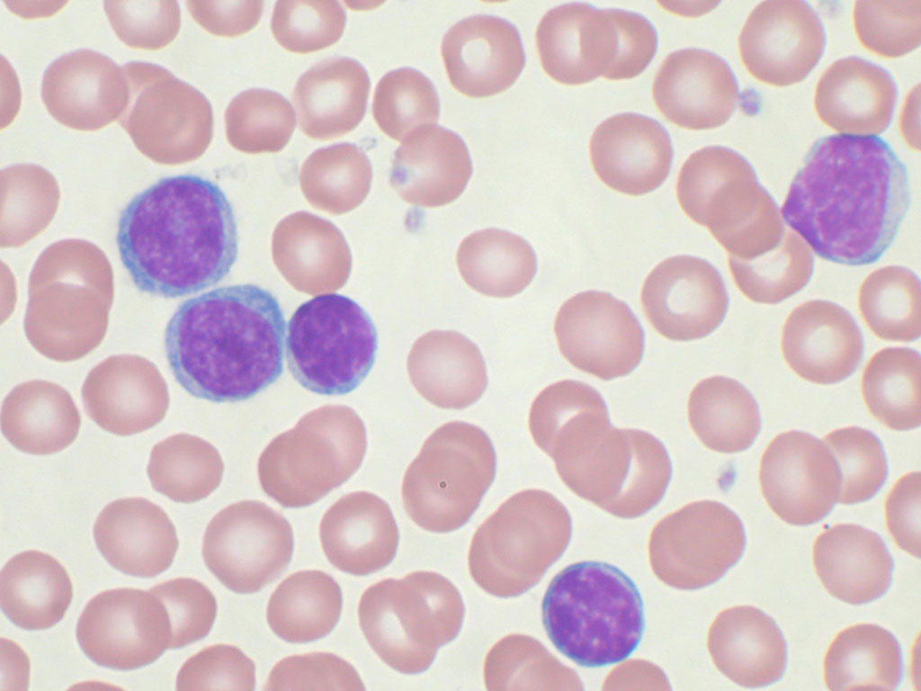 https://upload.orthobullets.com/topic/8026/images/acute_lymphoblastic_leukemia.jpg
