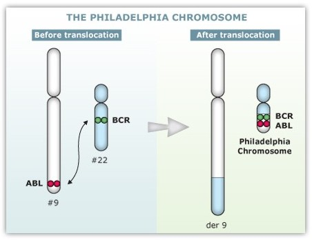 https://upload.orthobullets.com/topic/8026/images/philadelphia_chromosome.jpg