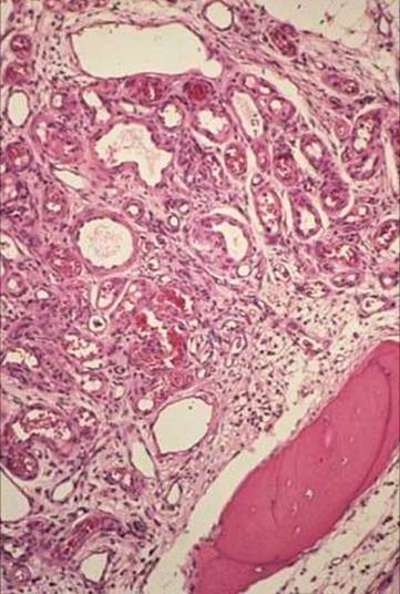 https://upload.orthobullets.com/topic/8033/images/Histology B - moderate - parsons_moved.jpg