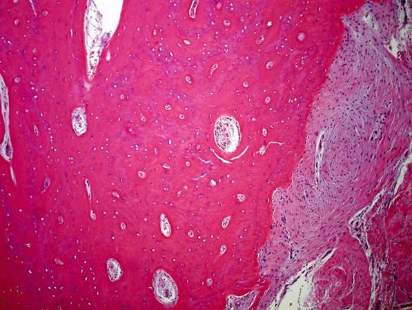 https://upload.orthobullets.com/topic/8043/images/melorheostosis histology.jpg