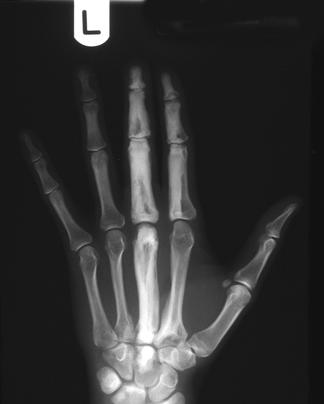 https://upload.orthobullets.com/topic/8043/images/x-ray_of_hand melorheostosis.jpg