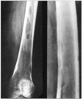 https://upload.orthobullets.com/topic/8045/images/Case H- femur (lung) - xray - parsons_moved.png