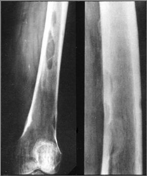 Metastatic cancer bones