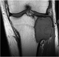 https://upload.orthobullets.com/topic/8046/images/Case I - knee - MRI T1 - parsons_moved.png