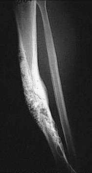 https://upload.orthobullets.com/topic/8048/images/Case A - tibia - xray b - parsons_moved.jpg