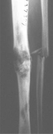https://upload.orthobullets.com/topic/8048/images/Case B - tibia - xray - parsons_moved.png