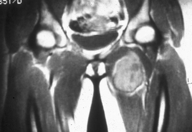 https://upload.orthobullets.com/topic/8049/images/adductor sarcoma.jpg