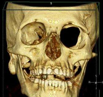 https://upload.orthobullets.com/topic/8056/images/sphenoid 2.jpg