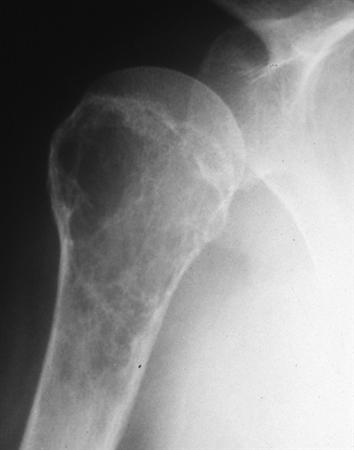 https://upload.orthobullets.com/topic/8058/images/humerus xray.jpg