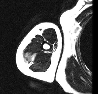 https://upload.orthobullets.com/topic/8062/images/t2 mri desmoid 2.jpg