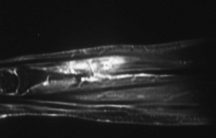 https://upload.orthobullets.com/topic/8069/images/hemangioma mri forearm.jpg