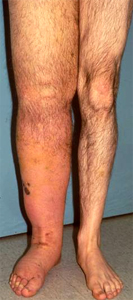 https://upload.orthobullets.com/topic/8070/images/Case B - leg - clinical photo - parsons_moved.jpg