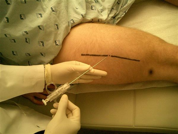 https://upload.orthobullets.com/topic/8082/images/biopsy thigh.jpg