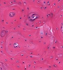 https://upload.orthobullets.com/topic/9001/images/lamellar bone histo.jpg