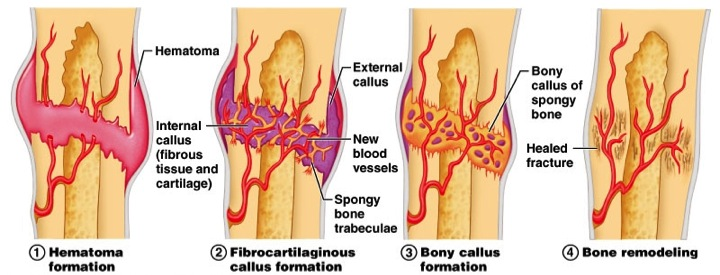 Fracture Healing - Basic Science - Orthobullets