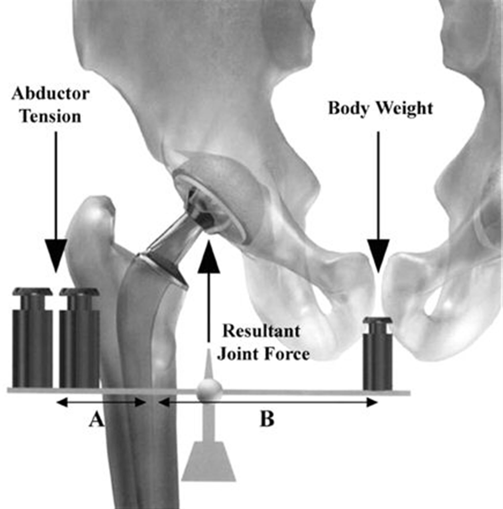 Hip Biomechanics Recon Orthobullets